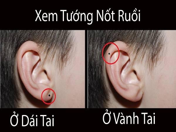 Nốt ruồi ở dái tai có ý nghĩa gì?